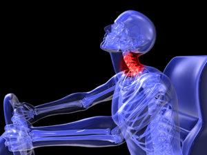 Auto Injury Treatment FL Complete Care Whiplash Treatment