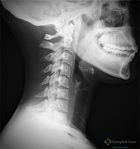 Auto Injury Treatment FL Complete Care Low Speed Accident Neck X-Ray